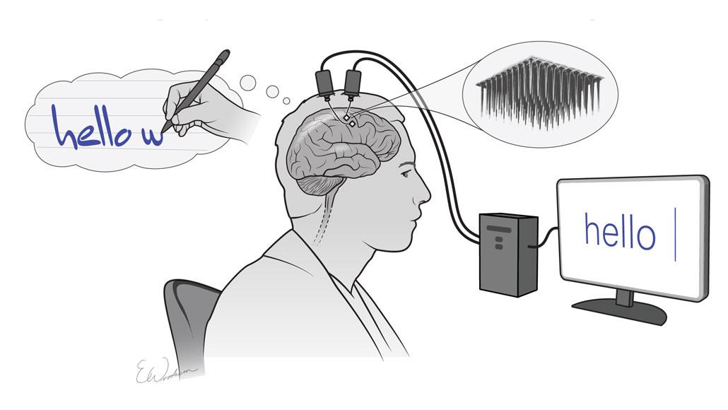 Defrag.mx ByteTrax Encom Implantes Cerebrales